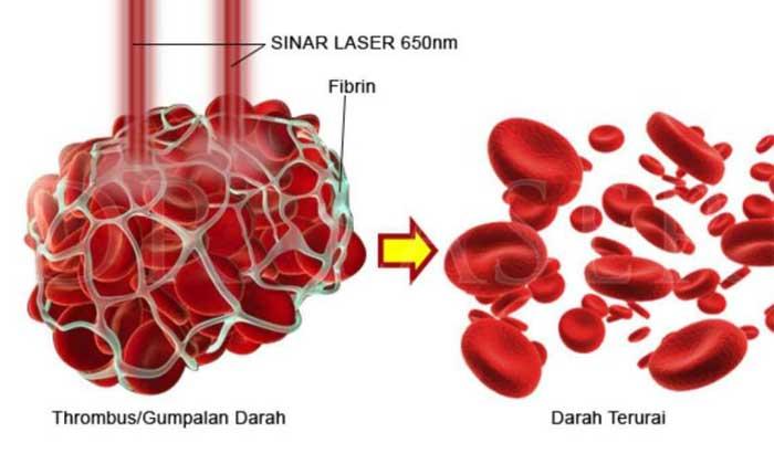 manfaat-dr-laser-terapi
